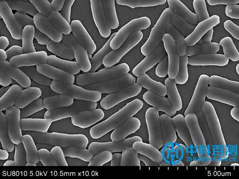 细菌检测案例1.jpg